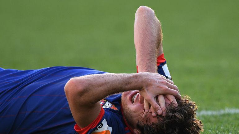 Марио Фернандес получил травму головы