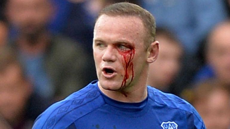 """Суббота. Ливерпуль. """"Эвертон"""" - """"Борнмут"""" - 2:1. Травма Уэйна РУНИ."""