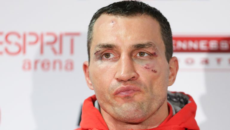 Владимир КЛИЧКО готовится к бою-реваншу с Тайсоном Фьюри и не намерен ехать на Олимпиаду. Фото AFP
