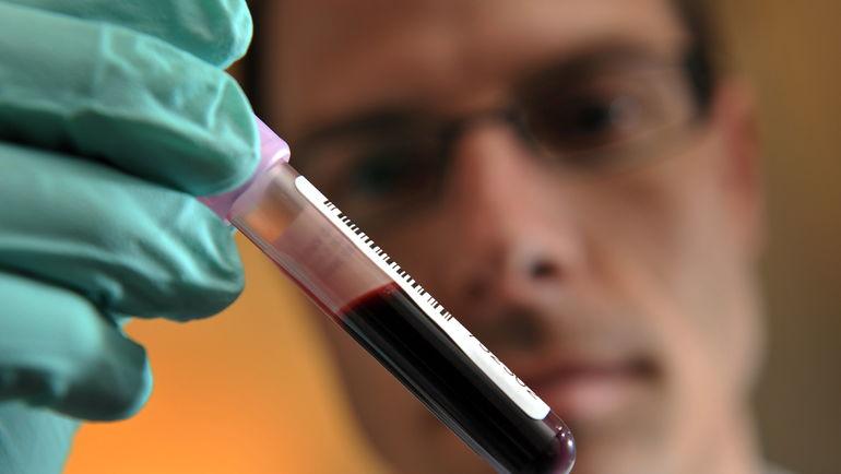 Специалист с образцом крови. Фото AFP