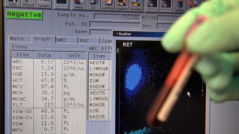 Данные анализа образца крови для биопаспорта. Фото AFP