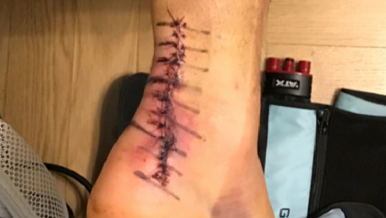 Нога Ведрана ЧОРЛУКИ после операции. Фото Инстаграм