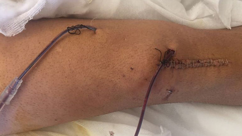 Колено Артура Юсупова после операции. Фото Instagram.com