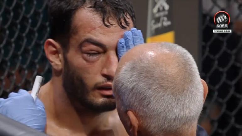 Уже после первого раунда врач вышел осмотреть глаз голландца.