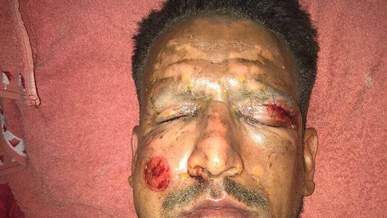 Футболист пытался зажечь пиротехнику, и она взорвалась у него в руках. Фото twitter.com