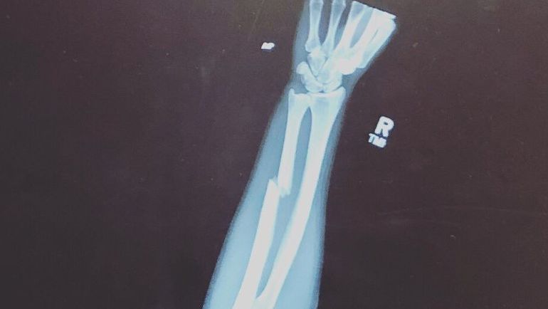 Снимок сломанной руки Пейдж Ванзант.