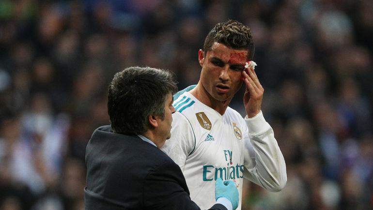 """Воскресенье. Мадрид. """"Реал"""" - """"Депортиво"""" - 7:1. КРИШТИАНУ РОНАЛДУ оформил дубль и получил в атаке от соперника ногой по голове. Фото REUTERS"""