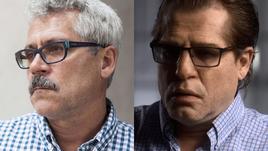 Григорий РОДЧЕНКОВ в Америке: до и после пластической операции.
