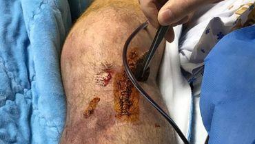 Олюнин показал ногу после операции. Фото (18+)