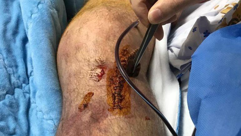 Нога Николая ОЛЮНИНА после операции.