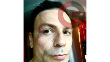 Кирьяков напал на Рабинера после эфира на ТВ