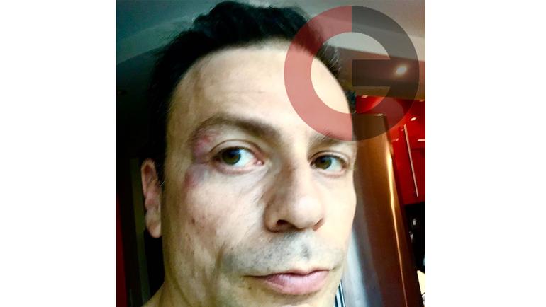 Игорь РАБИНЕР после нападения Сергея Кирьякова.