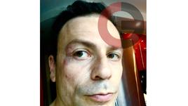 Кирьяков ударил по лицу Рабинера. Подробности