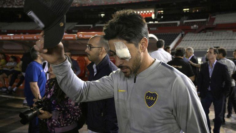 """Капитан """"Бока Хуниорс"""" Пабло Перес, пострадавший от нападения фанатов """"Ривер Плейт"""", с повязкой на травмированном глазу. Фото AFP"""