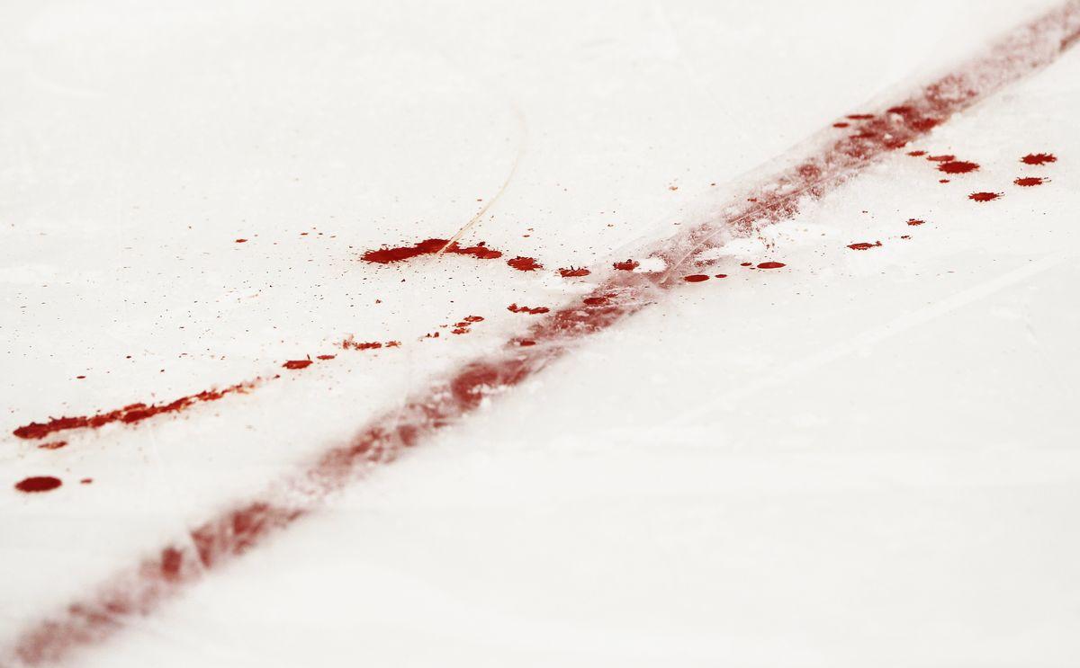 Убийства, драки, стрельба. Сколько еще безумия будет в детском хоккее?