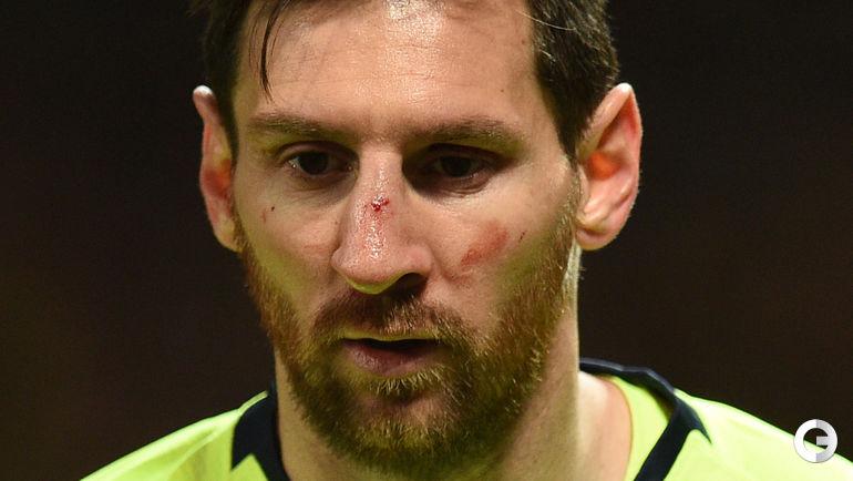 """10 апреля. Манчестер. """"Манчестер Юнайтед"""" - """"Барселона"""" - 0:1. Лионель Месси получил по носу в первом тайме."""