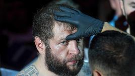 Емельяненко задержан за распитие алкоголя