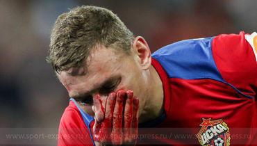 ЦСКА играл плохо. Но потерянные очки, кровь Чалова, травма Сигурдссона – на совести судьи