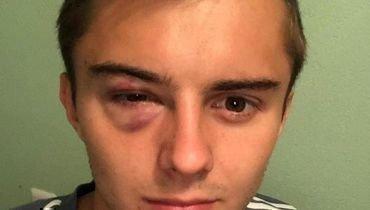 Александр Зуев: «Мне прилетел вглаз локоть. Асудья сказал: «Хватит валяться»