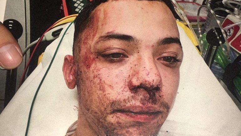 Альфи Перкинс после аварии. Фото Daily Star