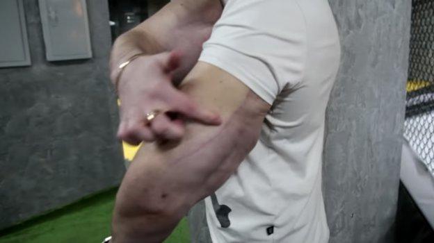 Руки Терешина после операции. Фото Youtube-канал Body Mania
