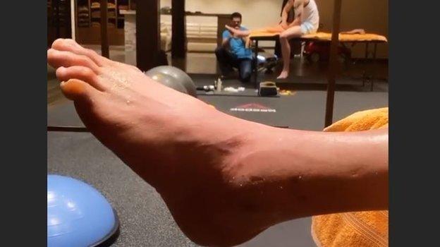 Тарасов показал свою травмированную ногу. Фото instagram.com