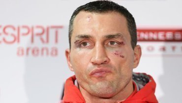 Кличко сообщил, что вСША нехватает элементарных вещей для борьбы скоронавирусом