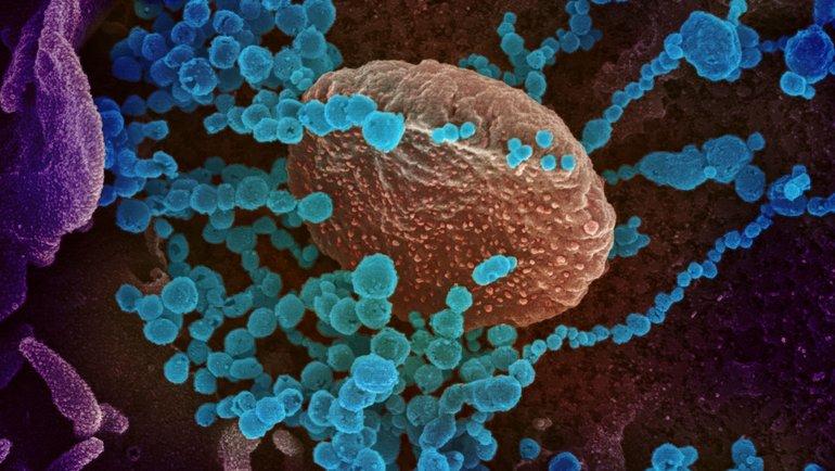 Коронавирус под микроскопом: 2019-nCoV, вызывающий COVID-19. Фото Reuters