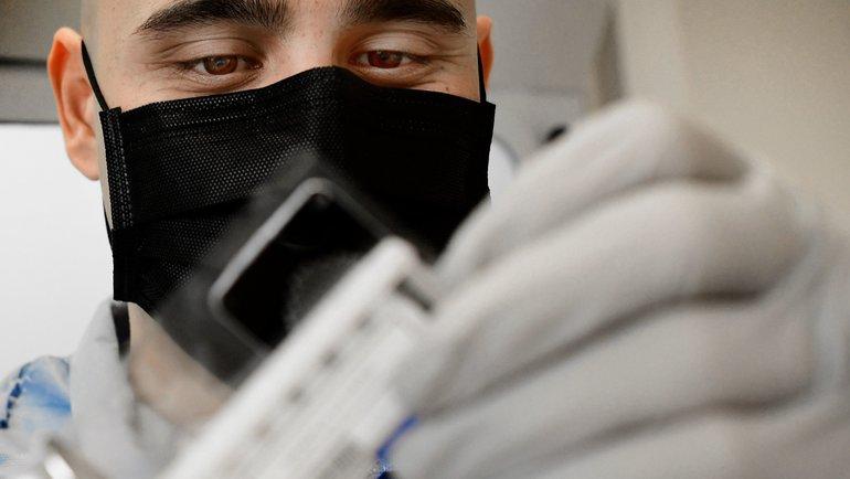 Высыпания нателе— один изсимптомов коронавирусной инфекции. Фото AFP