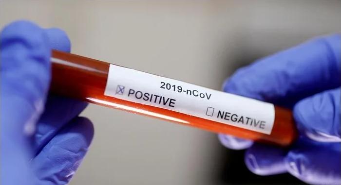 Тест накоронавирус. Фото Reuters