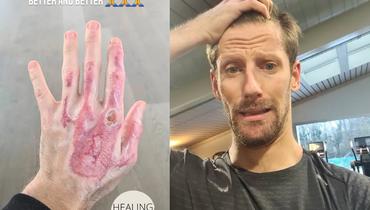 Грожан показал, как выглядит его левая рука после ожогов