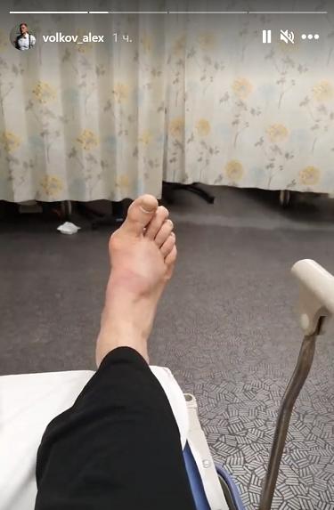 Нога Александра Волкова после боя с Алистаром Оверимом. Фото Instagram Волкова.