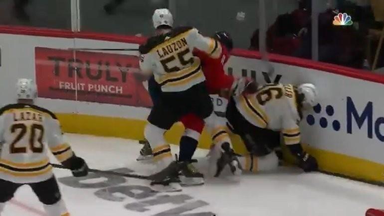 Александр Овечкин получил удар влицо клюшкой отзащитника «Бостона» Жереми Лозона.