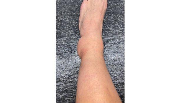 Нога Себальоса после травмы, полученной в матче с Египтом. Фото Twitter