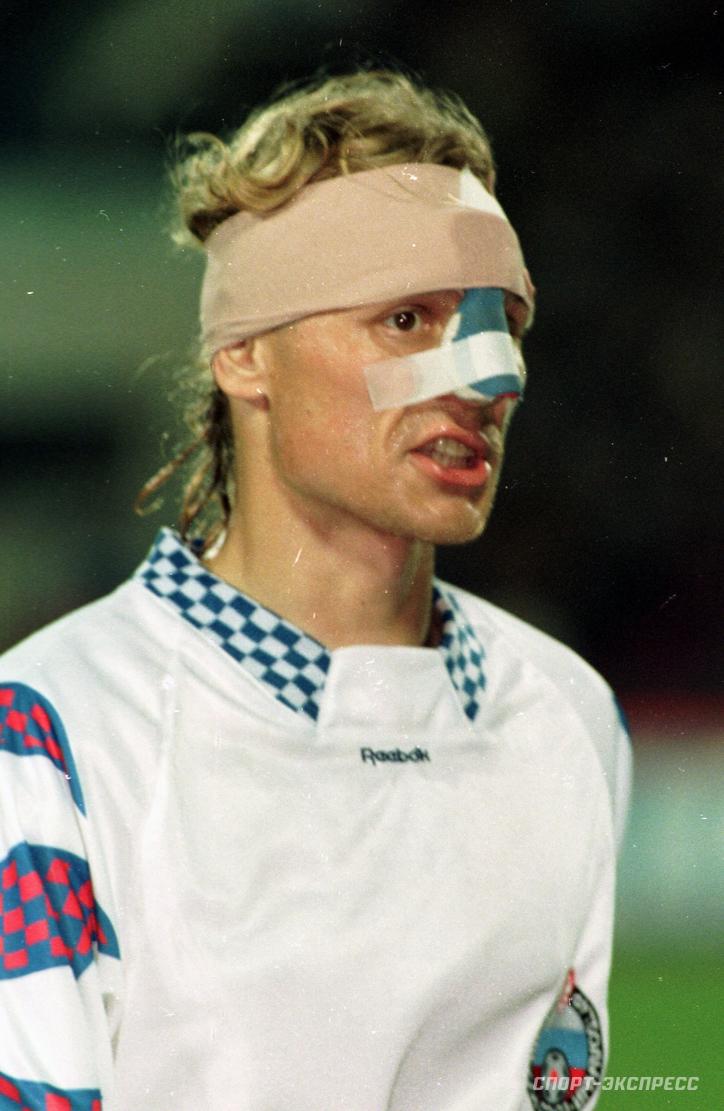 В1995 году Валерий Карпин играл засборную России сосломанным носом.