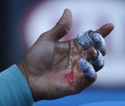 Рука Рафаэля Надаля. Фото REUTERS