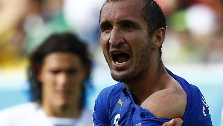 24 июня 2014 года. Натал. Уругвай – Италия - 1:0. Джорджо КЬЕЛЛИНИ демонстрирует след от укуса Луиса Суареса. Фото Reuters