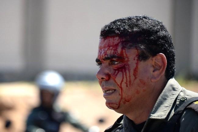 Сегодня. Форталеза. Один из пострадавших во время беспорядков Фото AFP