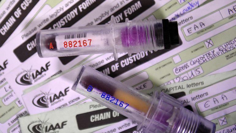 Туринабол - один из самых эффективных и изученных анаболических стероидов. Фото AFP