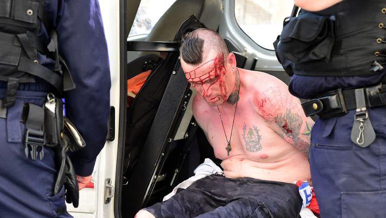 После событий в Марселе с британской стороны были пострадавшие. Фото AFP